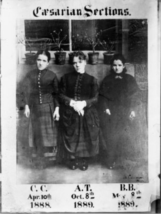 Cameron's first three patients. Courtesy Glasgow University/Heatherbank Museum of Social Work